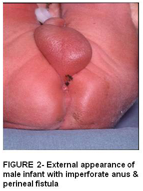 anus Anal atresia imperforate